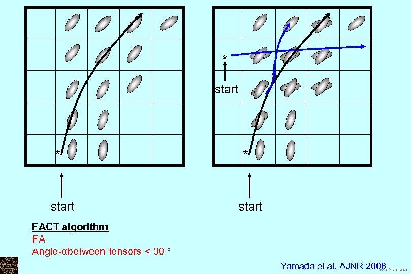 * start FACT algorithm FA Angle-αbetween tensors < 30 ° Yamada et al. AJNR