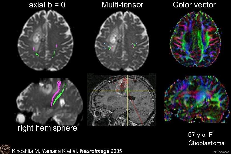 axial b = 0 Multi-tensor Color vector right hemisphere 協力:大阪大学医学部脳神経外科 Drs. Kinoshita, Hashimoto, Yoshimine
