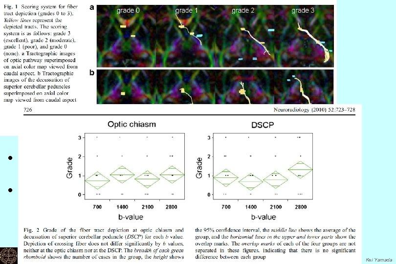 • Visual grading of the crossing fibers • Two locations; Ø optic chiasm