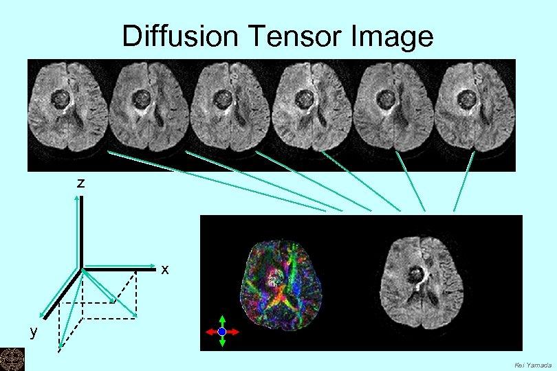 Diffusion Tensor Image z x y Kei Yamada