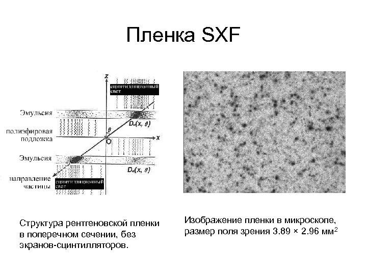 Пленка SXF Структура рентгеновской пленки в поперечном сечении, без экранов-сцинтилляторов. Изображение пленки в микроскопе,