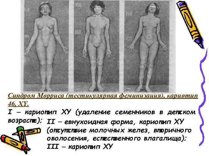 Синдром Морриса (тестикулярная феминизация), кариотип 46, XY. I кариотип XY (удаление семенников в
