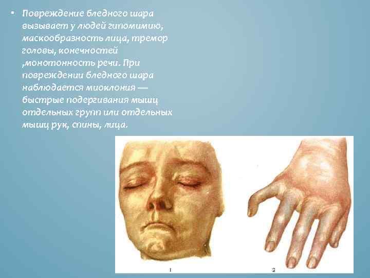 • Повреждение бледного шара вызывает у людей гипомимию, маскообразность лица, тремор головы, конечностей