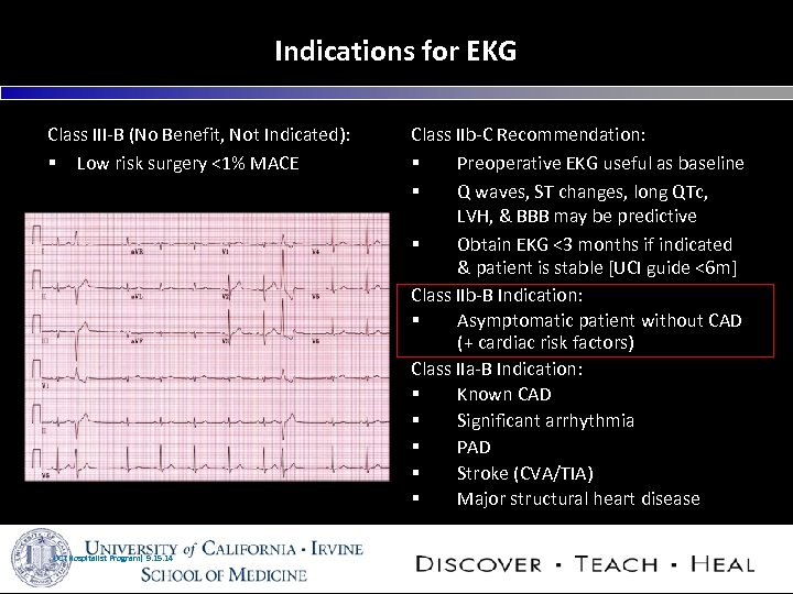 Indications for EKG Class III-B (No Benefit, Not Indicated): § Low risk surgery <1%