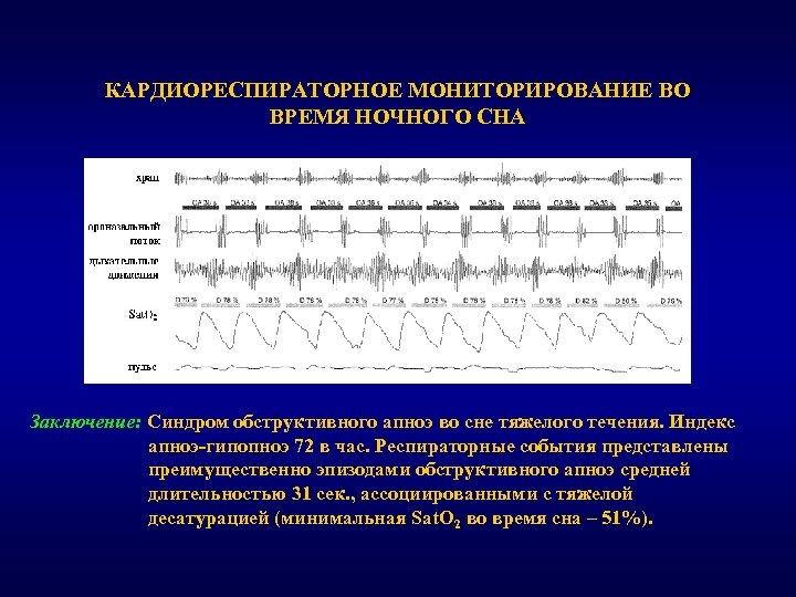 КАРДИОРЕСПИРАТОРНОЕ МОНИТОРИРОВАНИЕ ВО ВРЕМЯ НОЧНОГО СНА Заключение: Синдром обструктивного апноэ во сне тяжелого течения.