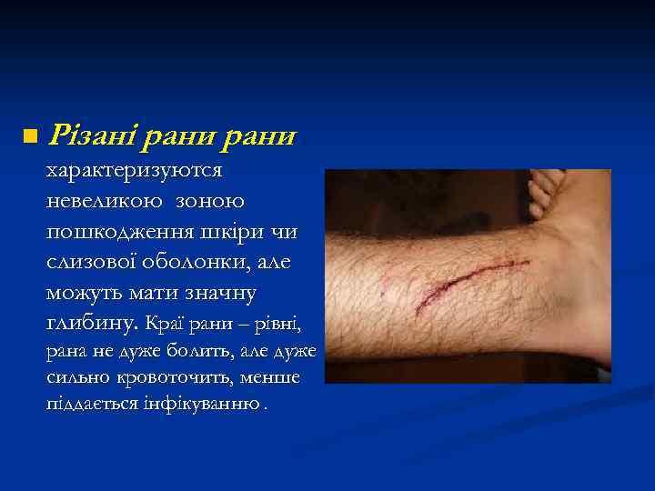 n Різані рани характеризуются невеликою зоною пошкодження шкіри чи слизової оболонки, але можуть мати