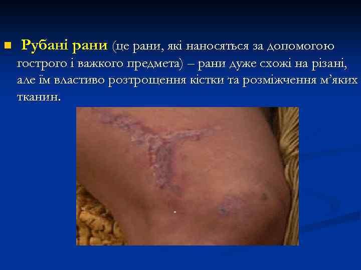n Рубані рани (це рани, які наносяться за допомогою гострого і важкого предмета) –