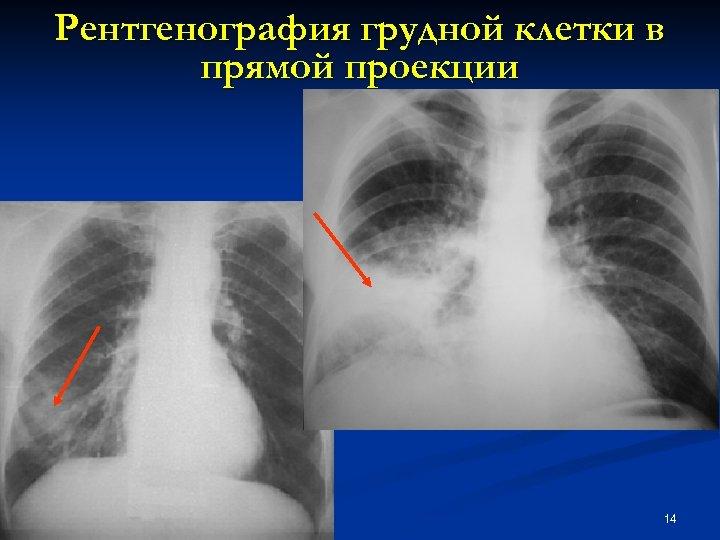 Рентгенография грудной клетки в прямой проекции 14