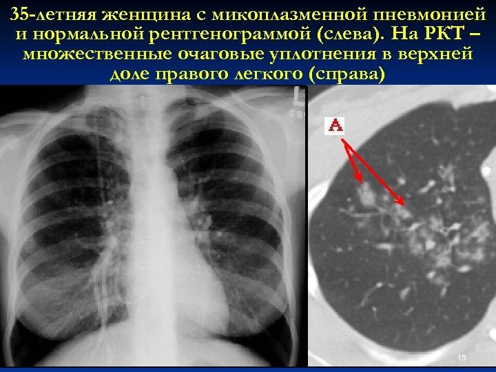 35 -летняя женщина с микоплазменной пневмонией и нормальной рентгенограммой (слева). На РКТ – множественные