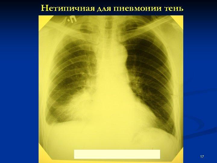 Нетипичная для пневмонии тень 17