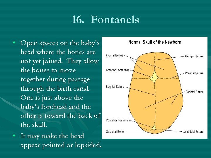 16. Fontanels • Open spaces on the baby's head where the bones are not
