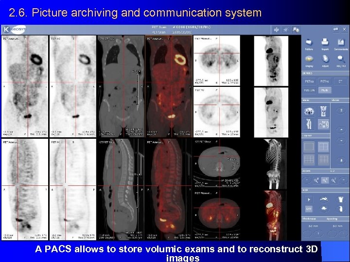 2. 6. Picture archiving and communication system A PACS allows to store volumic exams