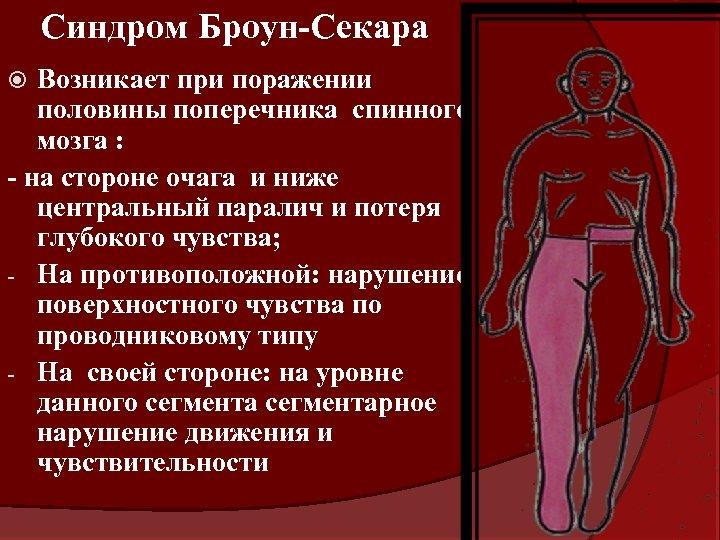 Синдром Броун-Секара Возникает при поражении половины поперечника спинного мозга : - на стороне очага
