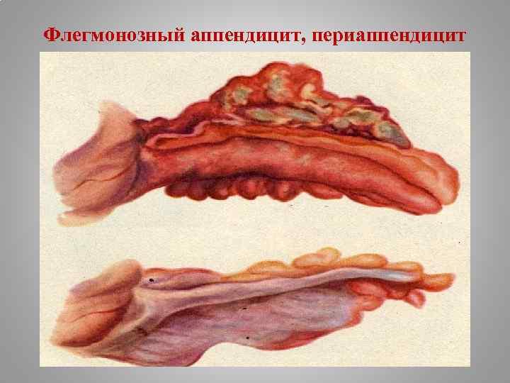 Флегмонозный аппендицит, периаппендицит