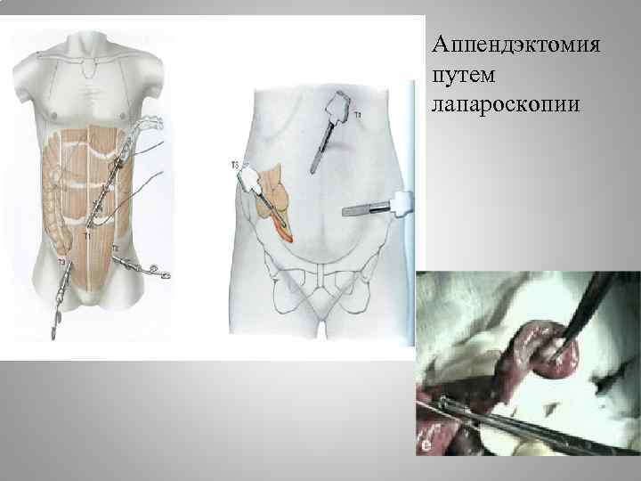 Аппендэктомия путем лапароскопии