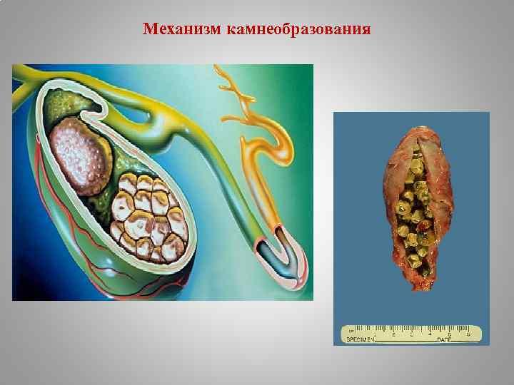 Механизм камнеобразования