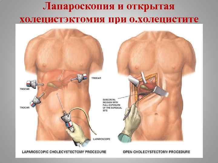 Лапароскопия и открытая холецистэктомия при о. холецистите