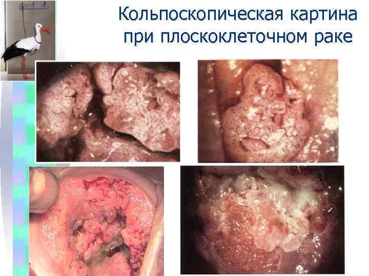 Картинки плоскоклеточный рак шейки матки