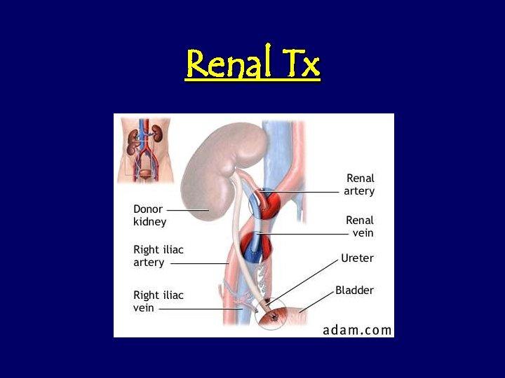 Renal Tx
