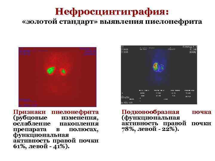 Нефросцинтиграфия: «золотой стандарт» выявления пиелонефрита Признаки пиелонефрита (рубцовые изменения, ослабление накопления препарата в полюсах,
