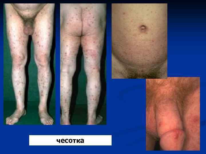 Картинки венерической болезни