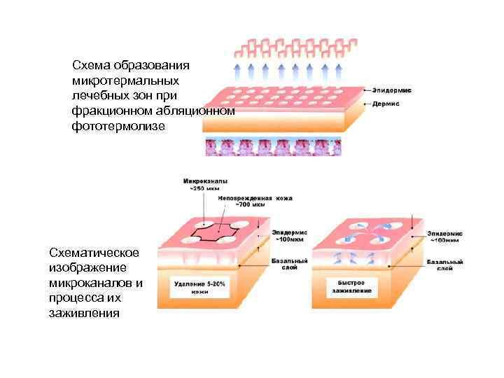 Схема образования микротермальных лечебных зон при фракционном абляционном фототермолизе Схематическое изображение микроканалов и процесса