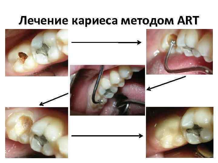 Лечение кариеса методом ART