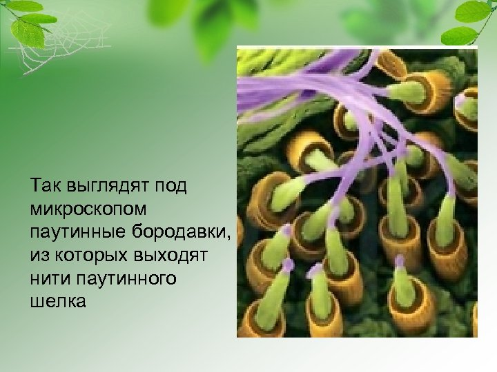Так выглядят под микроскопом паутинные бородавки, из которых выходят нити паутинного шелка