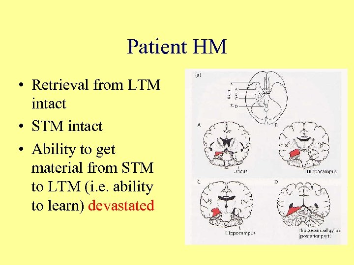 Patient HM • Retrieval from LTM intact • STM intact • Ability to get
