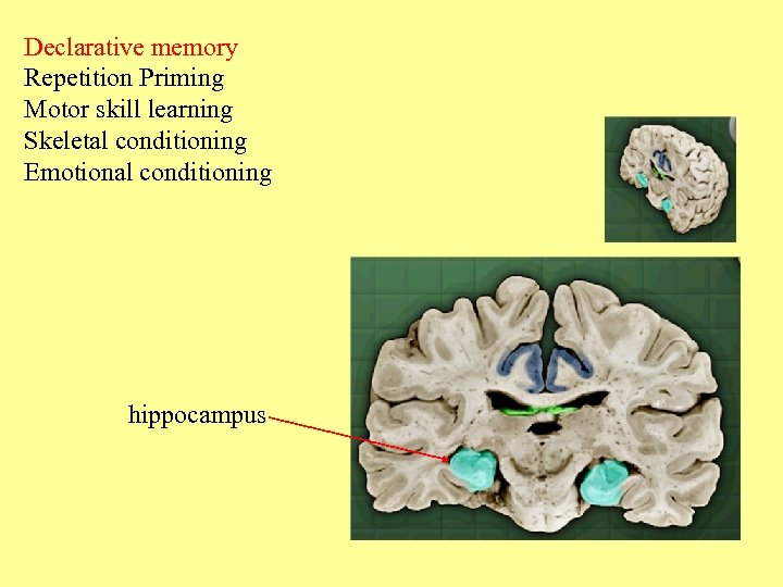Declarative memory Repetition Priming Motor skill learning Skeletal conditioning Emotional conditioning hippocampus