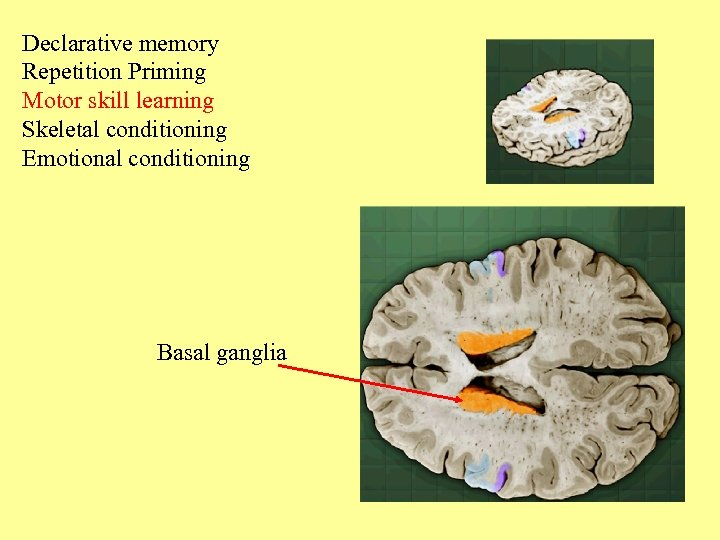 Declarative memory Repetition Priming Motor skill learning Skeletal conditioning Emotional conditioning Basal ganglia