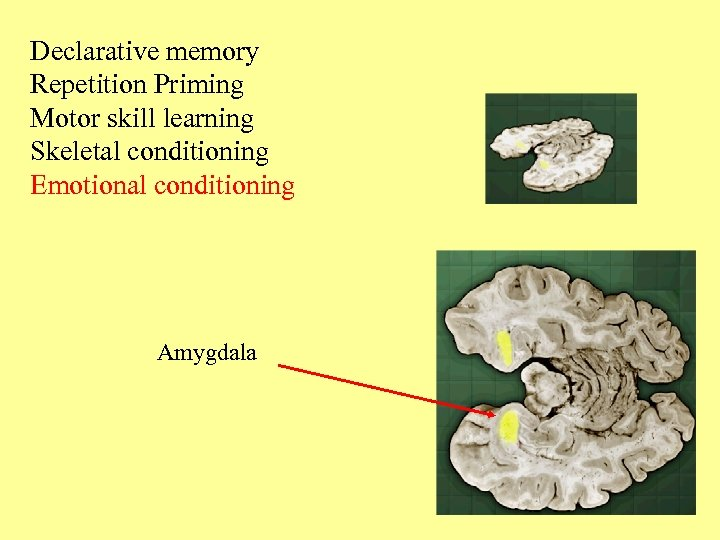 Declarative memory Repetition Priming Motor skill learning Skeletal conditioning Emotional conditioning Amygdala
