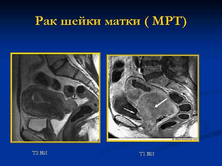Изображения на томораммах тазовых костей, головок бедренных костей, крестцово-подвздошных сочленений и лобкового симфиза с признаками жировой денегерации.