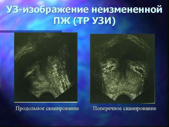 УЗ-изображение неизмененной ПЖ (ТР УЗИ) Продольное сканирование Поперечное сканирование