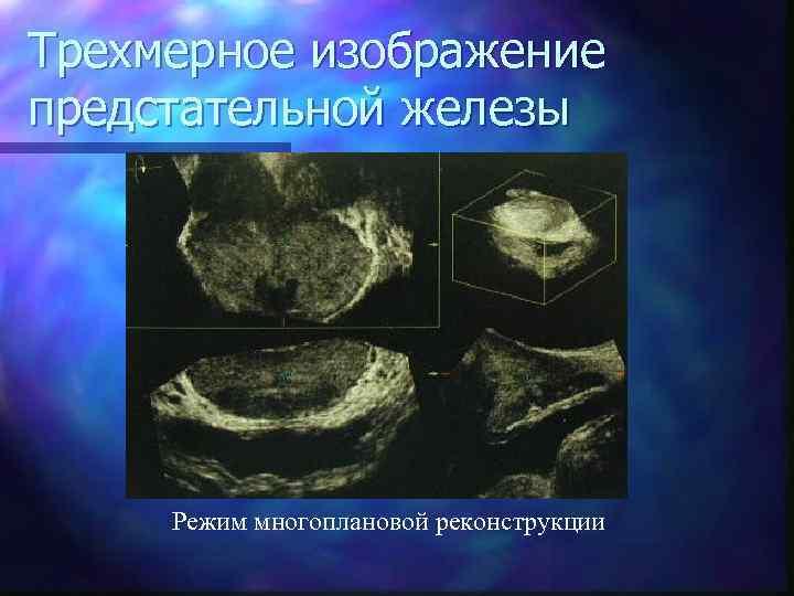 Трехмерное изображение предстательной железы Режим многоплановой реконструкции