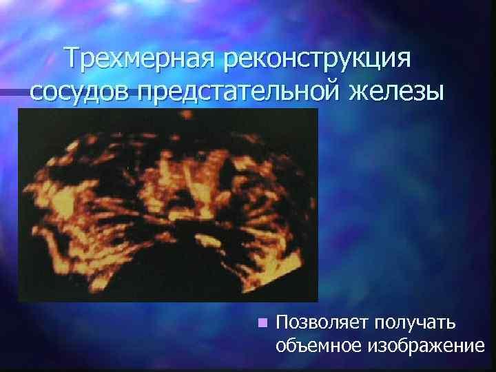 Трехмерная реконструкция сосудов предстательной железы n Позволяет получать объемное изображение