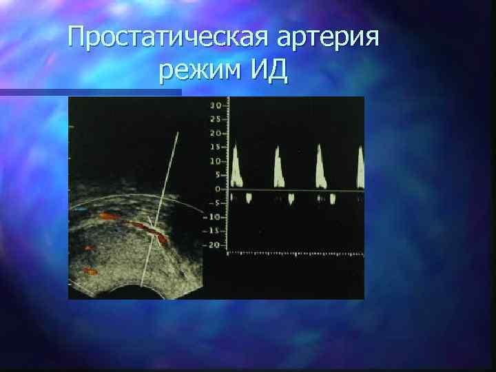 Простатическая артерия режим ИД