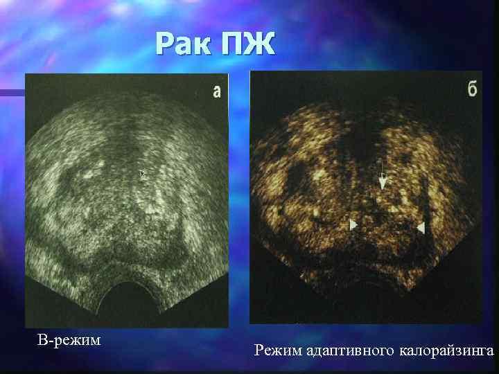 Рак ПЖ B-режим Режим адаптивного калорайзинга