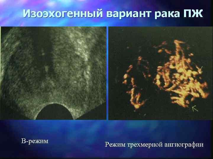 Изоэхогенный вариант рака ПЖ В-режим Режим трехмерной ангиографии