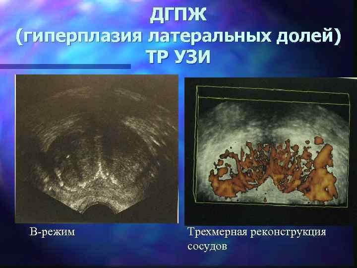 ДГПЖ (гиперплазия латеральных долей) ТР УЗИ В-режим Трехмерная реконструкция сосудов