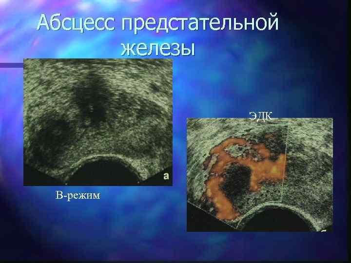 Абсцесс предстательной железы ЭДК В-режим