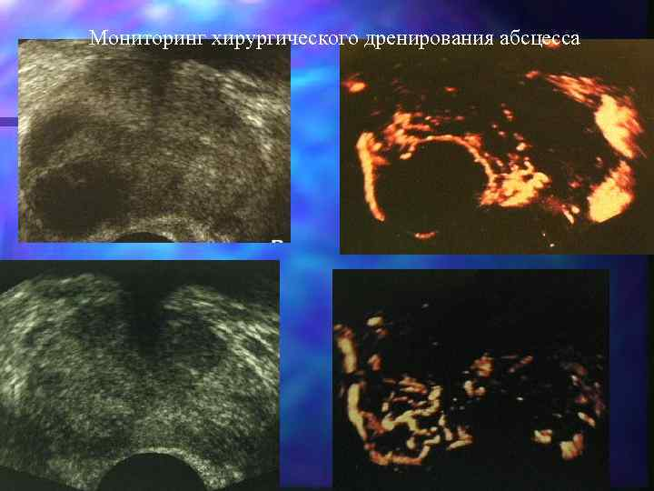 Мониторинг хирургического дренирования абсцесса