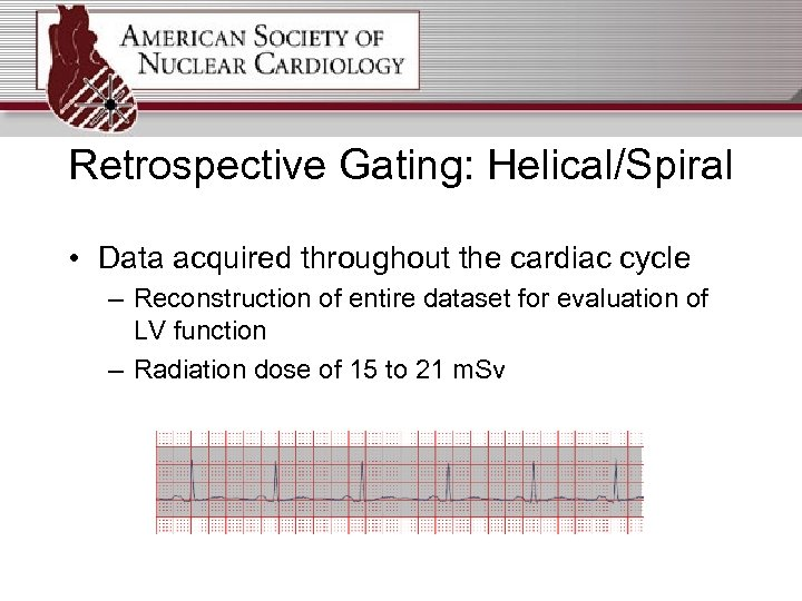 Retrospective Gating: Helical/Spiral • Data acquired throughout the cardiac cycle – Reconstruction of entire