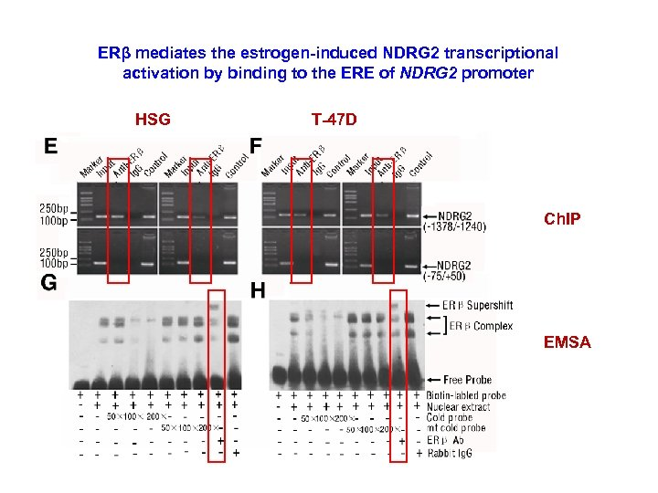 ERβ mediates the estrogen-induced NDRG 2 transcriptional activation by binding to the ERE of