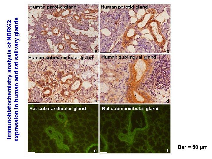 Immunohistochemistry analysis of NDRG 2 expression in human and rat salivary glands Human parotid