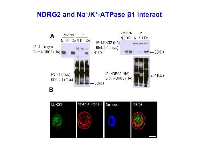 NDRG 2 and Na+/K+-ATPase β 1 Interact