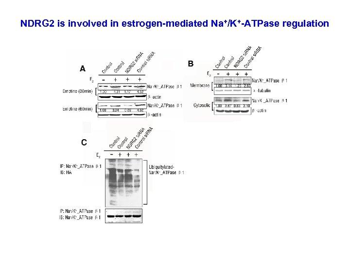 NDRG 2 is involved in estrogen-mediated Na+/K+-ATPase regulation