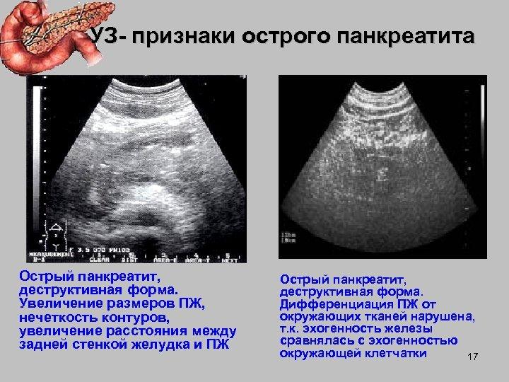 УЗ- признаки острого панкреатита Острый панкреатит, деструктивная форма. Увеличение размеров ПЖ, нечеткость контуров, увеличение