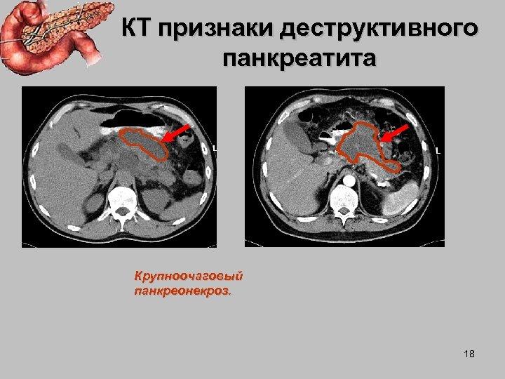 КТ признаки деструктивного панкреатита Крупноочаговый панкреонекроз. 18