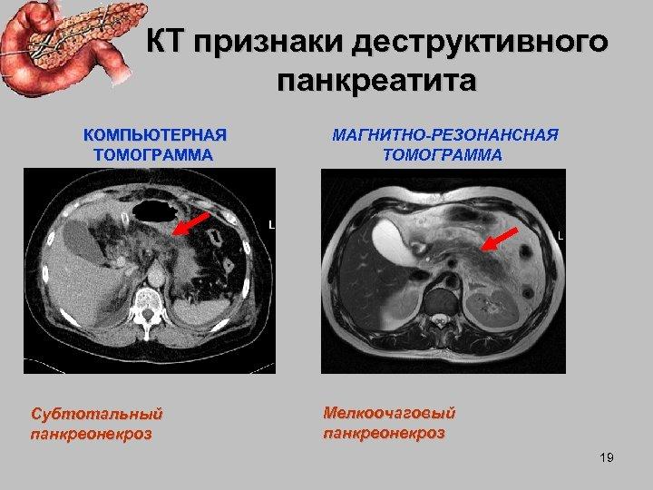 КТ признаки деструктивного панкреатита КОМПЬЮТЕРНАЯ ТОМОГРАММА Субтотальный панкреонекроз МАГНИТНО-РЕЗОНАНСНАЯ ТОМОГРАММА Мелкоочаговый панкреонекроз 19